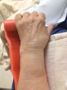 Mom's wrist after she fell roller skating