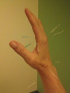 Hand Acupuncture
